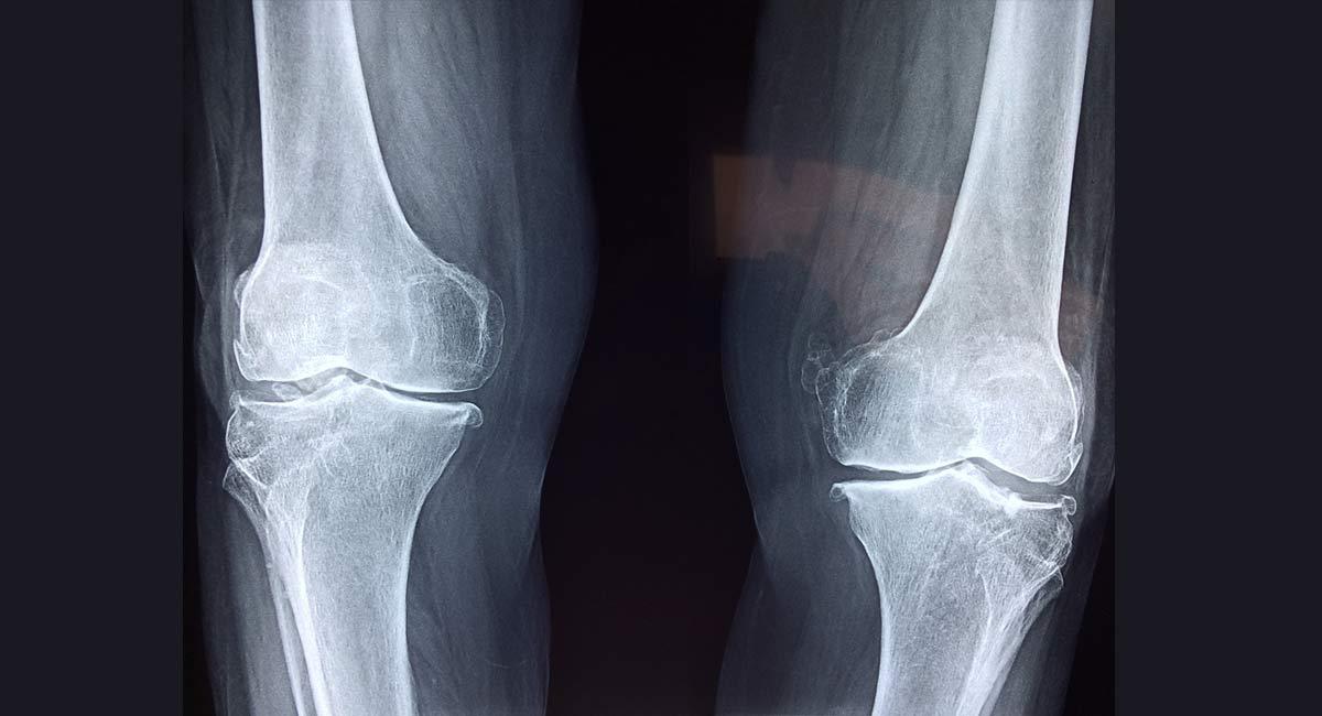 que-es-la-artrosis
